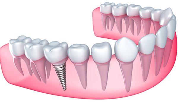 İmplant diş tedavisi nasıl yapılıyor, fiyatı nedir?